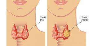 tiroid-nodul
